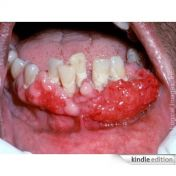 18. An Overview of Oral Cancer.jpg